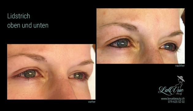 MICRONEEDLING PERMANENT MAKE UP MICROBLADING THUN BERN