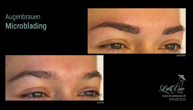 MICRONEEDLING PERMANENT MAKE UP MICROBLADING THUN BERNI