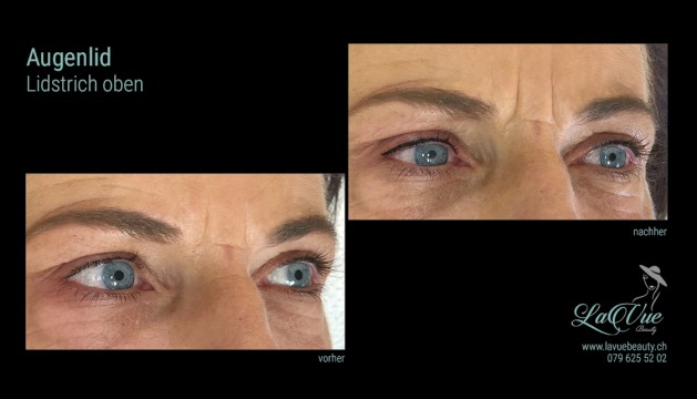 MICRONEEDLING Microblading Permanent Make-up Bern Thun