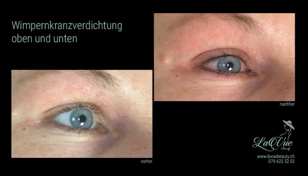 MICRONEEDLING MICROBLADING PERMANENT MAKE-UP THUN BERN